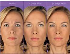 LI Dental Spa offers Botox and Juvederm