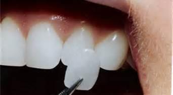 Long Island Dental Spa - Porcelain Veneers